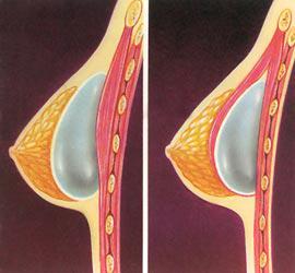 Borst prothese voor en tussen de borstspier cosmetic-services