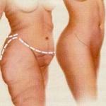 Correctie van teveel-verzakking-na-grote-gewichtsverlie