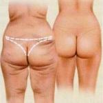 Huid correctie na veel gewichtsverlies