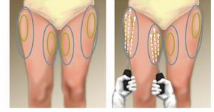 Liposuctie dijbeen Cosmetic-Services