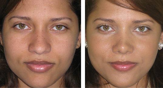 neusverkleining voor en na