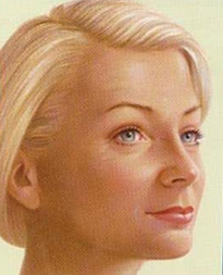 Facelift cosmetic-services