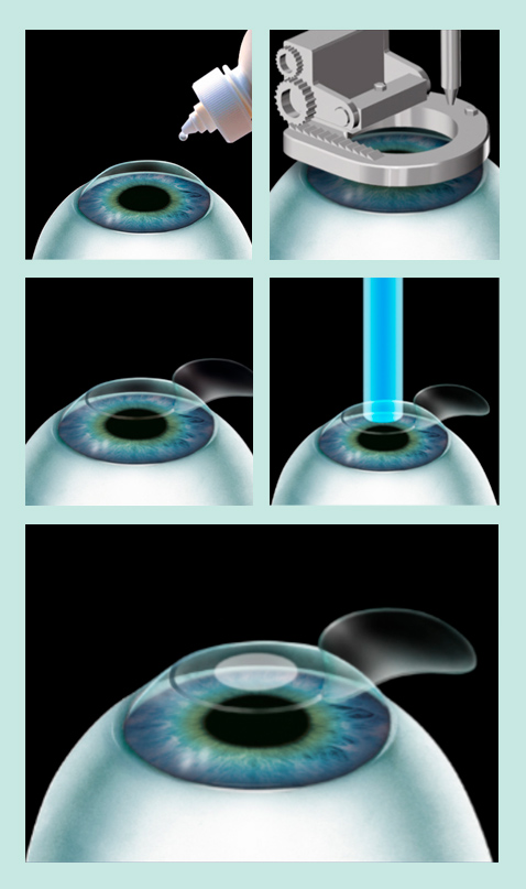 LASIK behandeling Cosmetic-Services