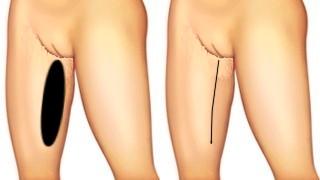 Dijbeenlift Techniek met lineaire litteken Cosmetic-Services