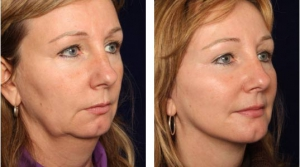 Facelift 3 cosmetic-services