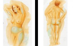 Liposuctie behandel plekken 1 Cosmetic-Services