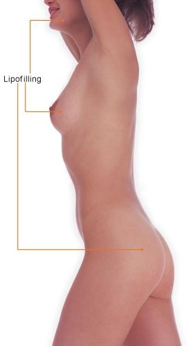 Lipotransfer borsten en billen Cosmetic-Services